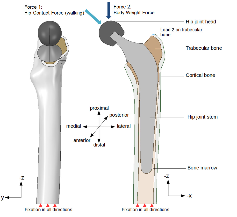 Step By Step Tutorial Session 1 Hip Joint Prosthesis Biomedical